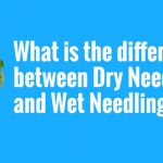 Your Health Matters – What is the difference between Dry Needling and Wet Needling?